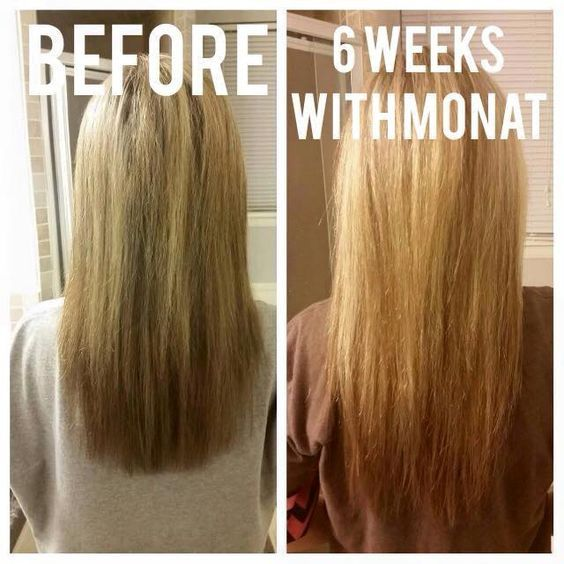 monat before and after reviews