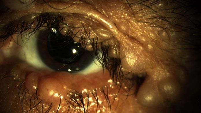review of optometry handbook of ocular disease
